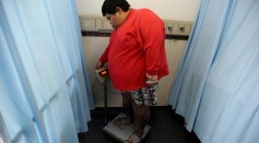 23-year-old Xu Han who weights 174 kilograms stands on a weighing machine at the First Affiliated Hospital of Chongqing Medical University on May 6, 2016 in Chongqing, China.