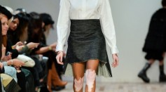 Model with Vitiligo. Winnie Harlow, walks the runway at the R13 fashion show during New York Fashion Week on February 8, 2017 in New York City.