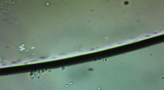 Microscope View of Silver Killing Bacteria