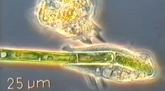 Amoeba eating a green algae