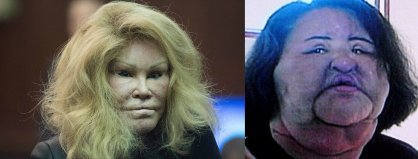 Topsi News: Plastic Surgery Gone Bad  |Plastic Surgery Procedure Gone Wrong