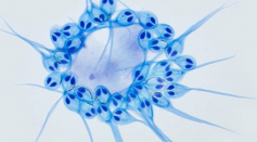 Jellyfish-like parasite Can Live Without Oxygen: The First of Its Kind