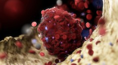 Coronavirus is Linked to Blood Clots in the Legs of Patients
