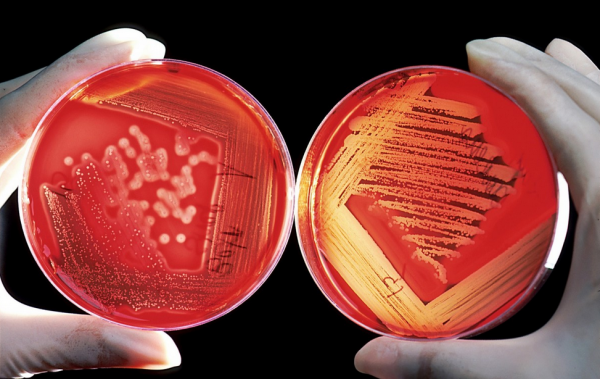 Science Times - Scientists Discover How to Fight Antibiotic-Resistant Bacteria