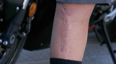 Skin Study Gives Insight on How Wounds Heal