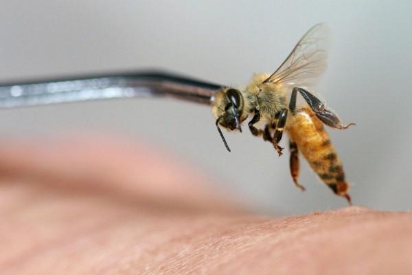 3 Types of Bee Venom Therapy