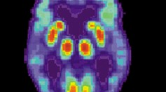 Neurologists Are Treating Alzheimer's Disease By Sending Electrical Currents Deep in the Brain