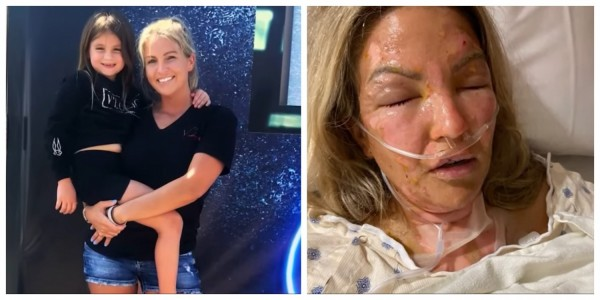 Woman Severely Burned After Hand Sanitizer Caught On Fire and Exploded