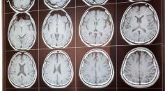 MRI Imaging Reveals Evidence of Dissociative Symptoms Linked to Childhood Trauma