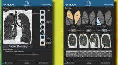 VIDA Diagnostis Inc. Receives FDA Clearance to Advance AI LungPrint Solution