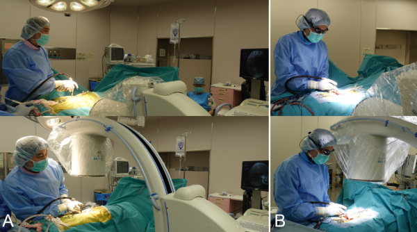 PicoLinker Device Assisting Surgeons May Replace Traditional Support Monitors