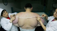 Clinic In Wuhan Treats Obese Teenager With Acupuncture