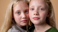 Science Times - Identical Twins Don't Share the Same DNA All The Time, New Study Finds