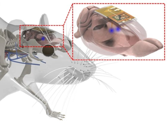 Therapeutic Wireless Rechargeable Tiny Brain Implant Can Be Controlled Using Smartphone