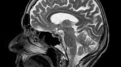 Brain Stimulation Could Boost A Person's Courage and Remove Fear