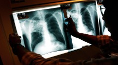 Science Times - Gene Variant's Evolution Revealed; Scientists Show How People Become Vulnerable to Tuberculosis