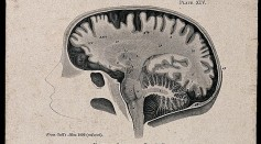 Science Times - Women's Brains: Why Are They More Vulnerable to Anxiety Disorder, Alzheimer's Disease?