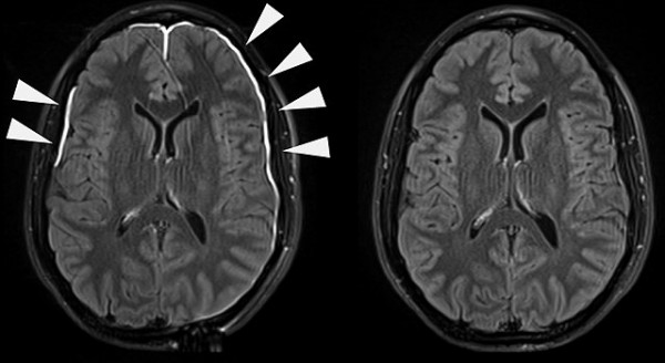 Science Times - Immune Cells that Shield Brain, Spinal Cord Mainly Come from Skull; Finding that Sheds Light to Possibility of Developing Treatment for Brain Conditions