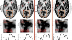 Result of the Hoffman brain phantom study.