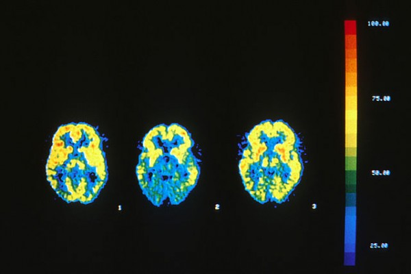Science Times - Lipophilic Statin Given to Dementia Patients More than Doubles Risk of Developing the Condition
