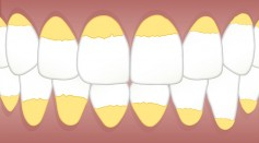 Plaque vs Tartar: Can Teeth Whitening Toothpaste Remove Them