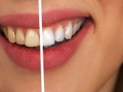 How to Make Teeth Whiter Instantly
