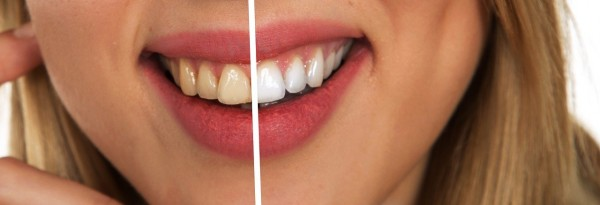 Science Times - Best Teeth Whitening Kit With Light That You Can Use At Home