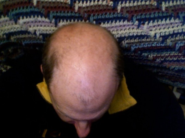 Science Times - Microneedle Patch May Help Solve Baldness; This New Invention Contains Nanoparticles That Can Regrow Hair Faster