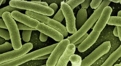 Salmonella Outbreak From Unknown Source More Than Doubled in One Week, Infecting 279 People, 26 Hospitalized in 29 States