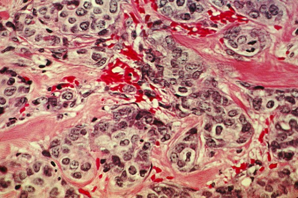 Science Times - Early Cancer Detection: Study Shows How Use of an 'Innovative Microscope Slide' Can Effectively Determine Diseased Cells