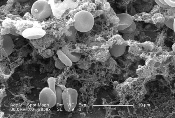 Blood_clot_in_scanning_electron_microscopy.jpg