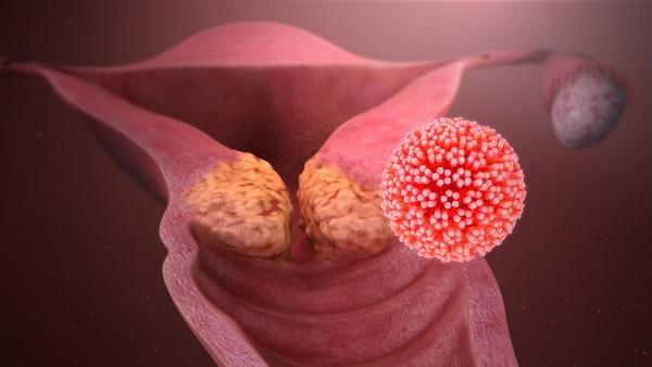 HPV_causing_cervical_cancer.jpg