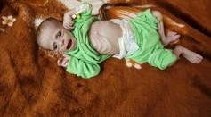 Malnourished kid