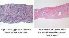 Gene therapy in combination with radiation therapy is a better and more effective treatment against prostate cancer