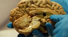 Blocking Brain Inflammation