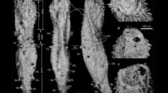 530-Million Year Old Fossils Of Ancient Microscopic Worms Discovered In China