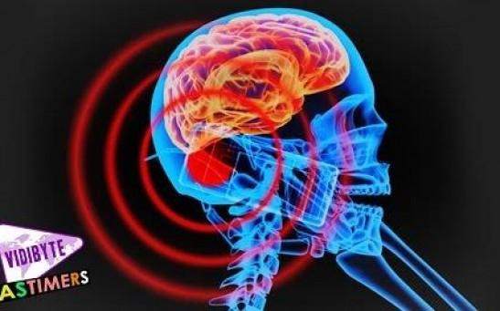 Brain Tumors – Does Cell Phone Radiation Cause Brain Cancer? || Healthy lifestyle