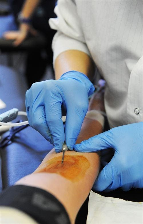 5 Benefits to IV Therapy