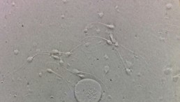 Male Fertility: Increased Chemical Exposure, Lifestyle Changes Cause Sperm Quality in the US to Decline